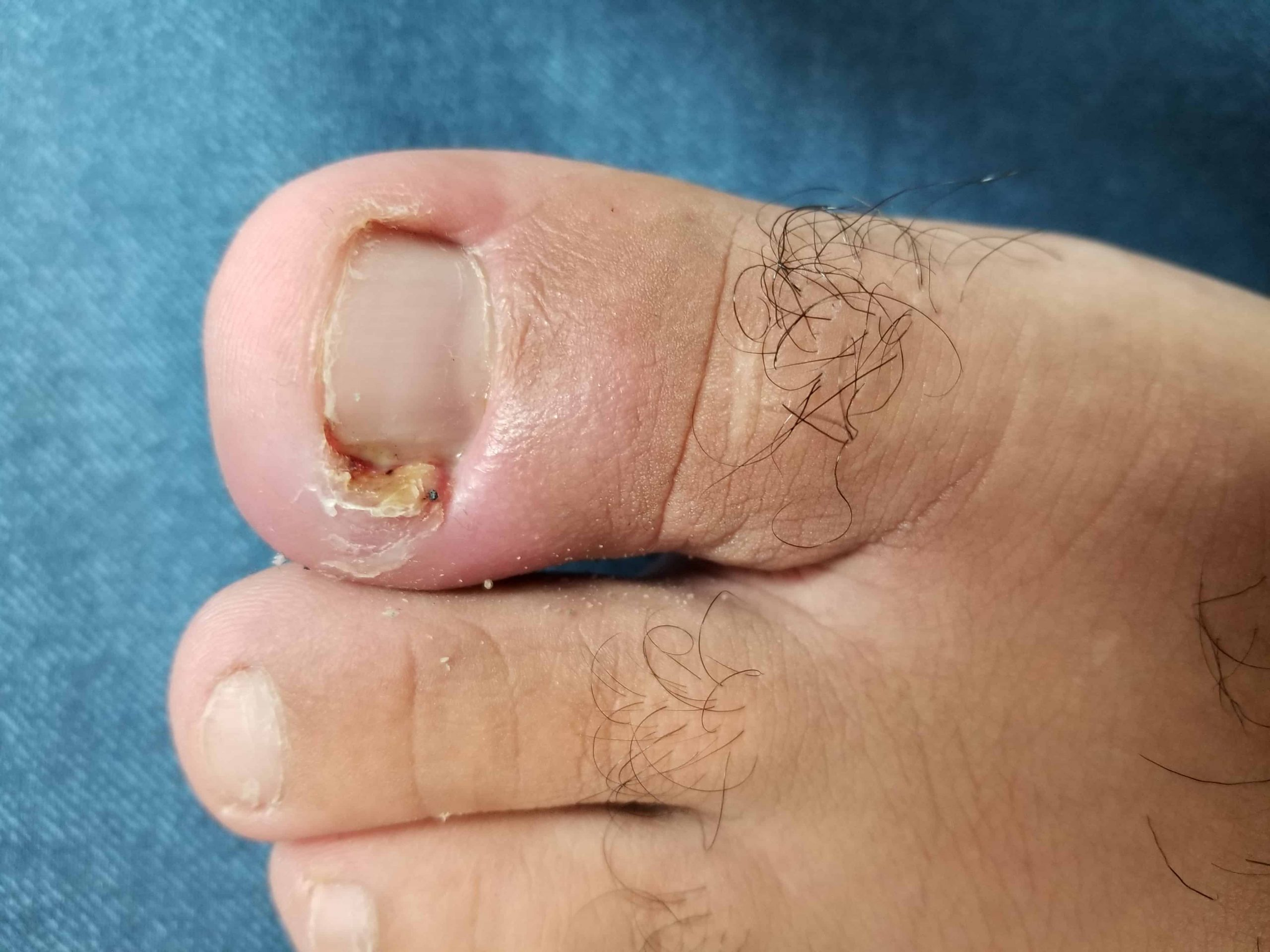Ancaster Foot Clinic Ingrown Toenails